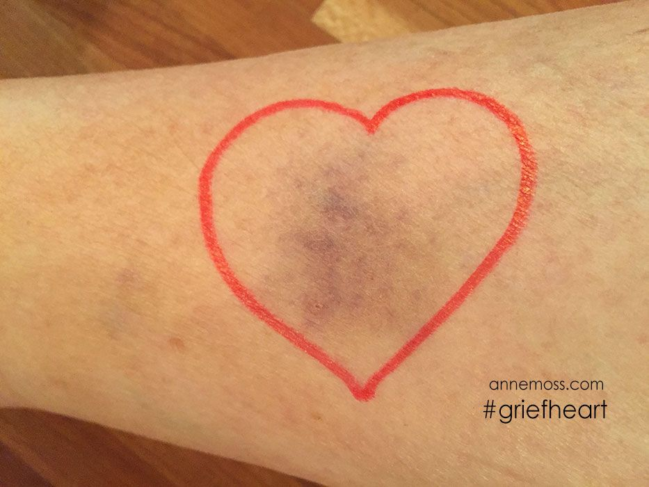 Bruised heart – #griefheart number 128-When you lose a child, the bruise on your heart doesn't fade like the ones on…