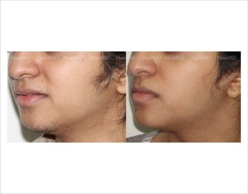 Pcos Hair Growth On Chin Treated By Laser Hair Removal Laser Hair Removal Pcos Hair Growth Chin Hair Removal