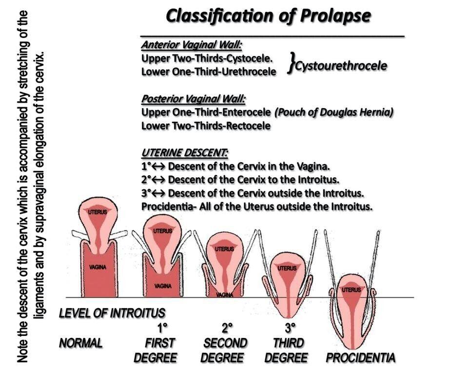 Uterine prolapse uterus obg nursing pinterest physician uterine prolapse uterus obg ccuart Image collections