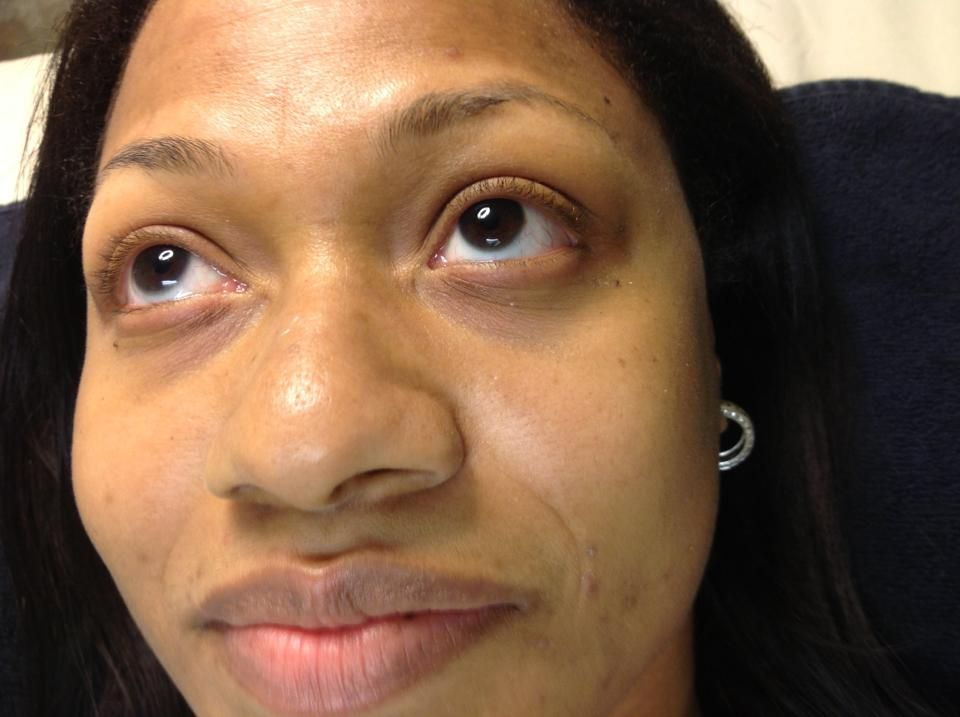 Client had short lashes. She wanted them to be natural ...