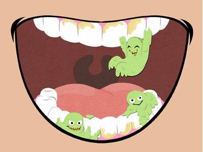 Image result for dental plaque