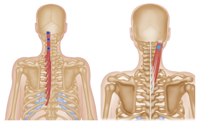 Trigger Point Therapy , Neck Arthritis (Cervical Spondylosis