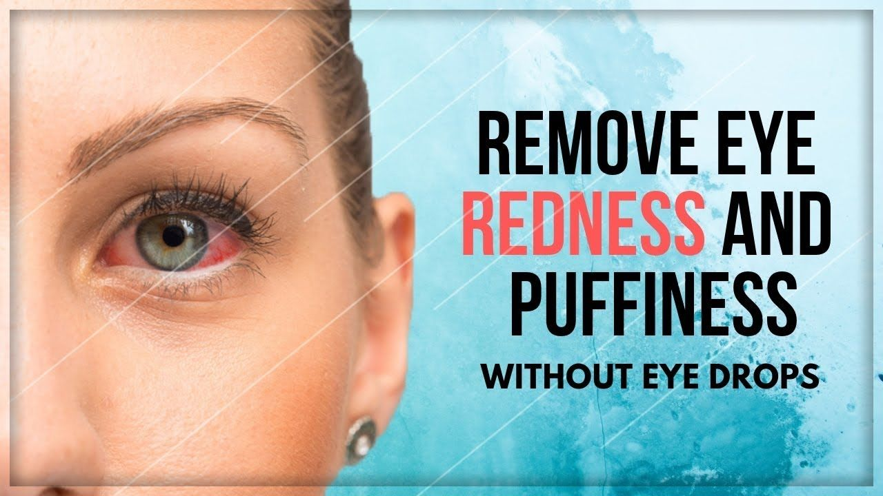 HOW TO GET RID OF RED EYES WITHOUT EYE DROPS CLEAR eyes