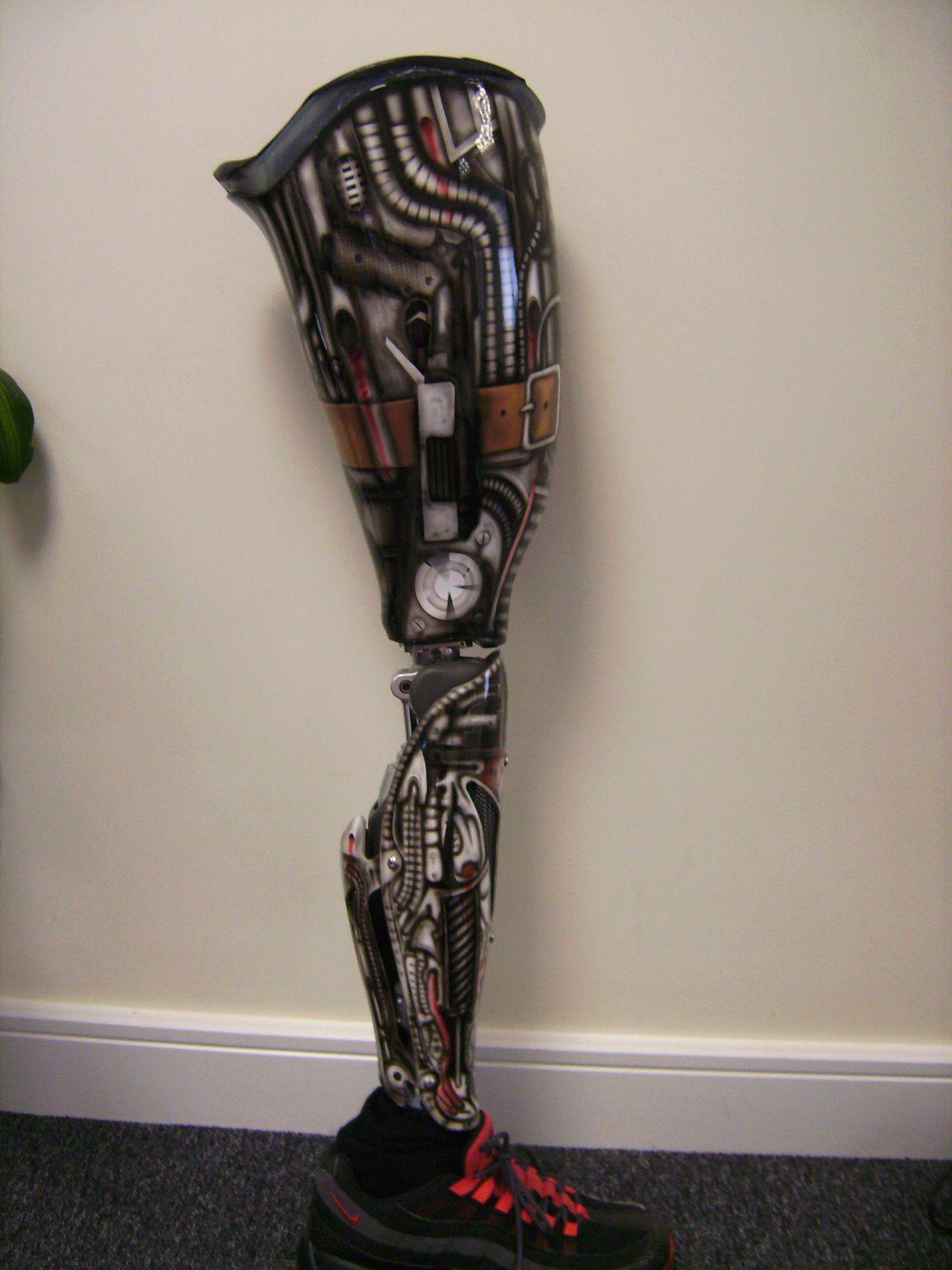 Prothesis prosthetic