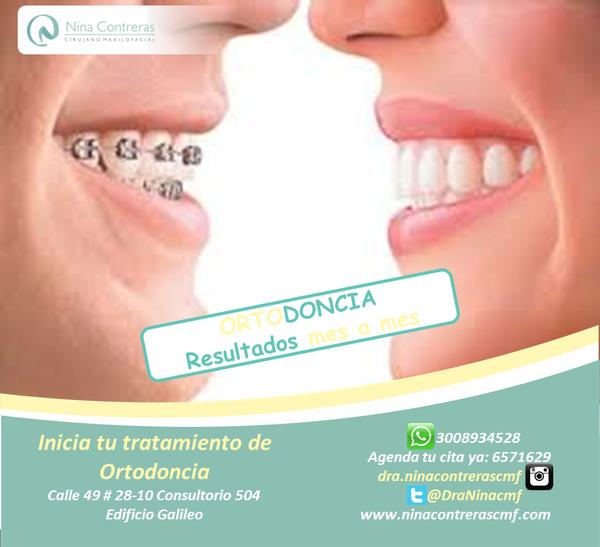 Queremos formar parte de tu sonrisa! El día está perfecto para iniciar tu tratamiento de ortodoncia, atrévete a generar cambios! Excelentes planes y descuentos. Agenda tu cita ya: 6571629 - WhatsApp: 3008934528 http://ninacontrerascmf.com/location/