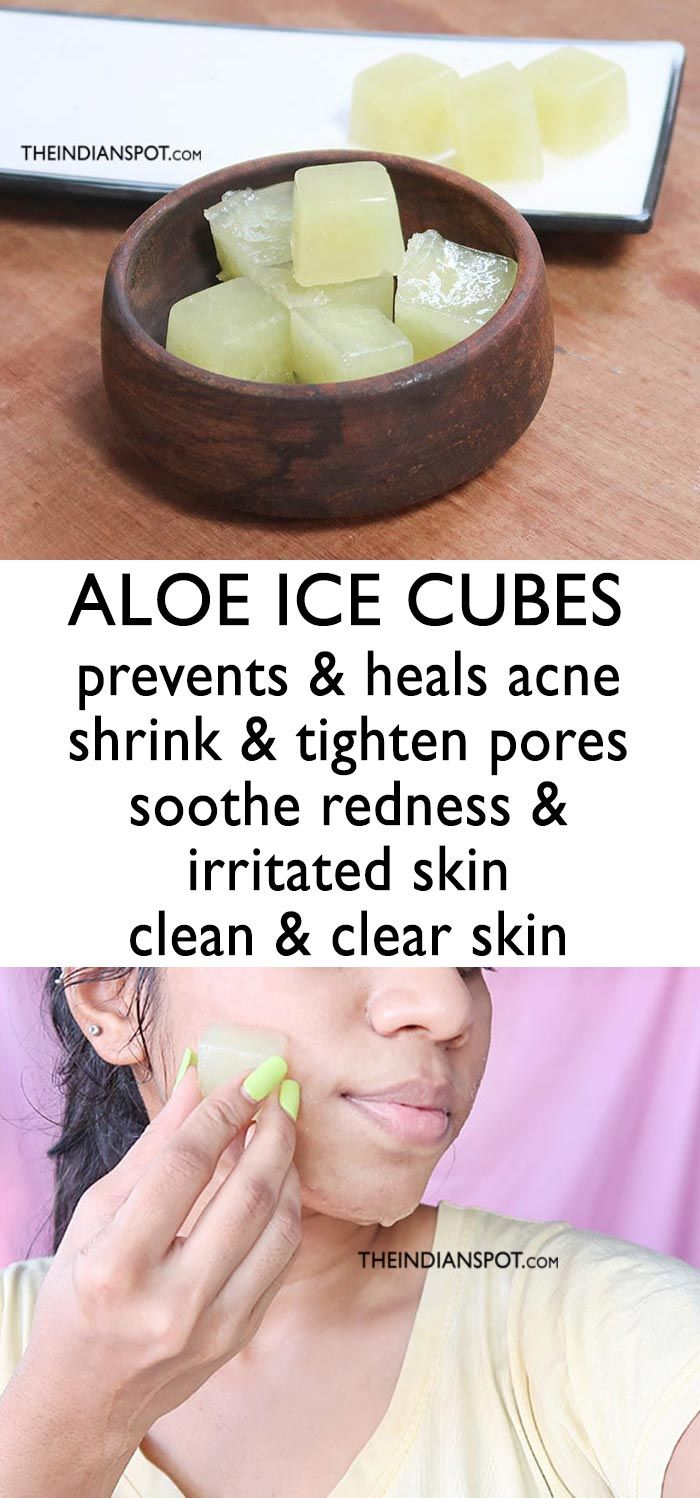 9ea23efbb6e3ed2ac912c44a602772dc - How To Get Rid Of Ice Burn On Face