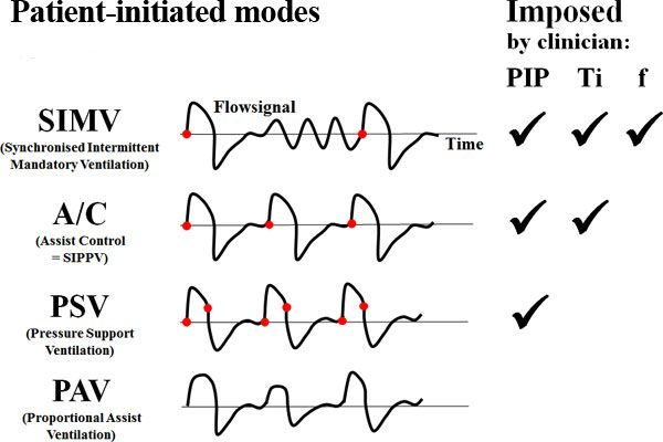 Patient Initiated Modes of Ventilation #rcp #rt #