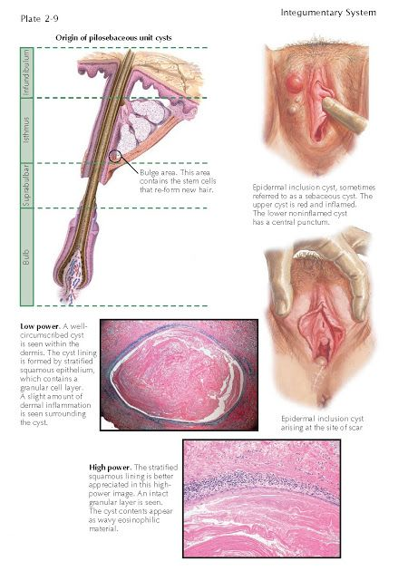 Epidermal Inclusion Cyst Epidermal Inclusion Cysts Are The