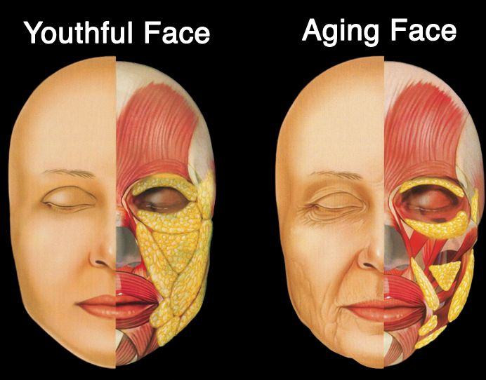 Facial fat deposits