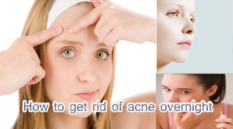 How To Get Rid Of Pimples Instantly How To Get Rid Of Pimples How To Get Rid Of Acne Acne Overnight How To Get Rid Of Pimples