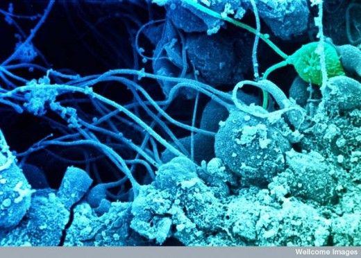 elmundovistodesdeunmicroscopioimage02-520x372.jpg (520×372)