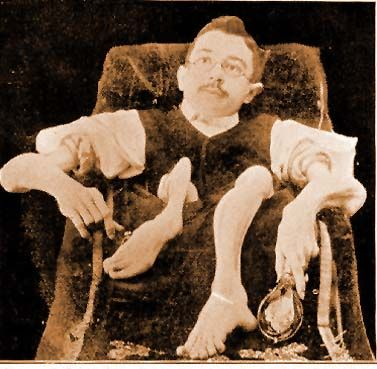 Ivannow Wladislaus von Dziarski-Orloff (1864 - 1904) was normal until age 14, when he got an unknown wasting disease. His skin was paper thin and his musculature so atrophied that with the aid of a bright spotlight spectators could actually see the blood coursing through his veins. He used an opium pipe for the pain from his condition, which became one of his trademarks on stage.