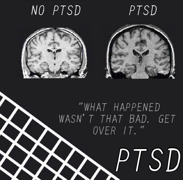 Image result for ptsd stigma
