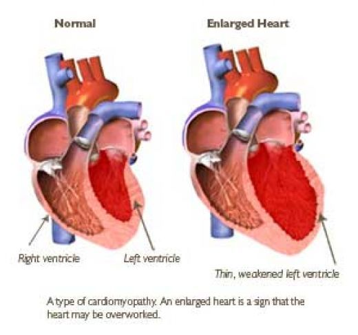 Myocardial infarction condition known congestive heart failure ...