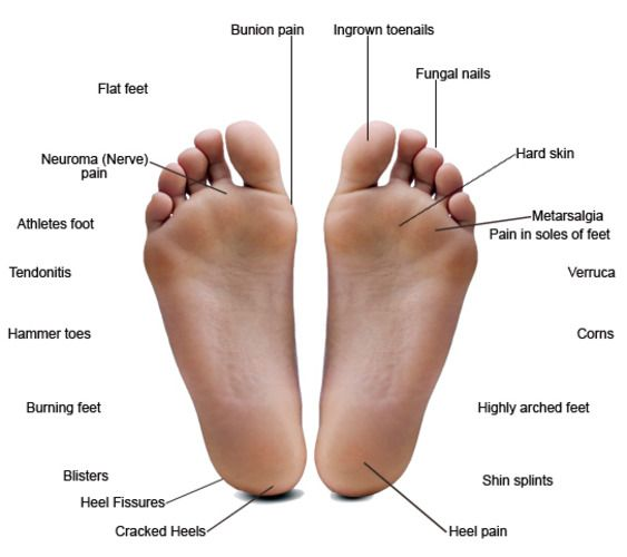 Database of feet problems | Anatomy & Physiology Homeschool