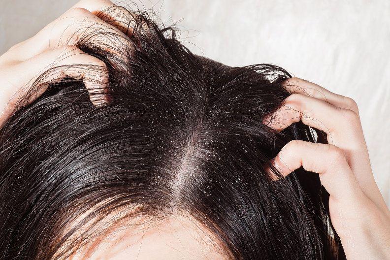 Hausmittel Gegen Schuppen Diese 10 Mittel Helfen Schuppen Haare