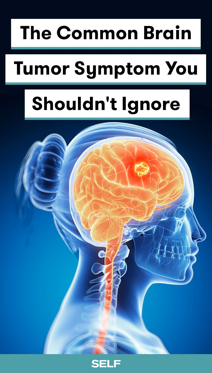 The Common Brain Tumor Symptom You Shouldn't Ignore | Health