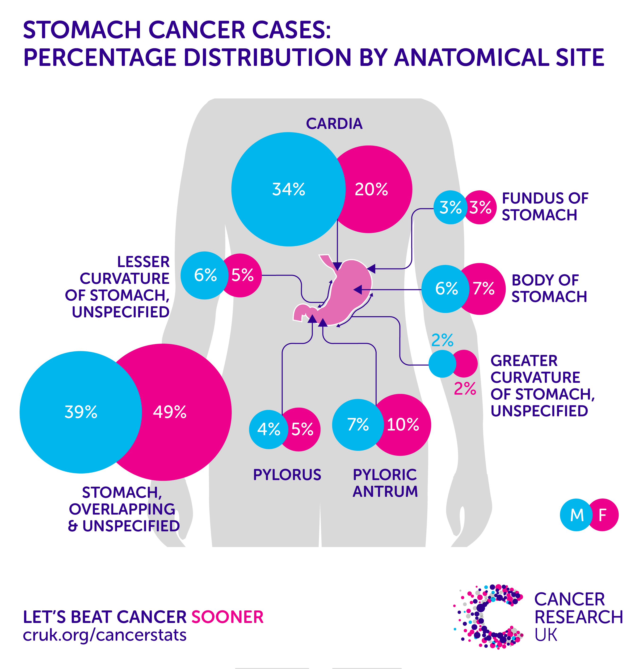 stomach cancer incidence statistics cancer research uk