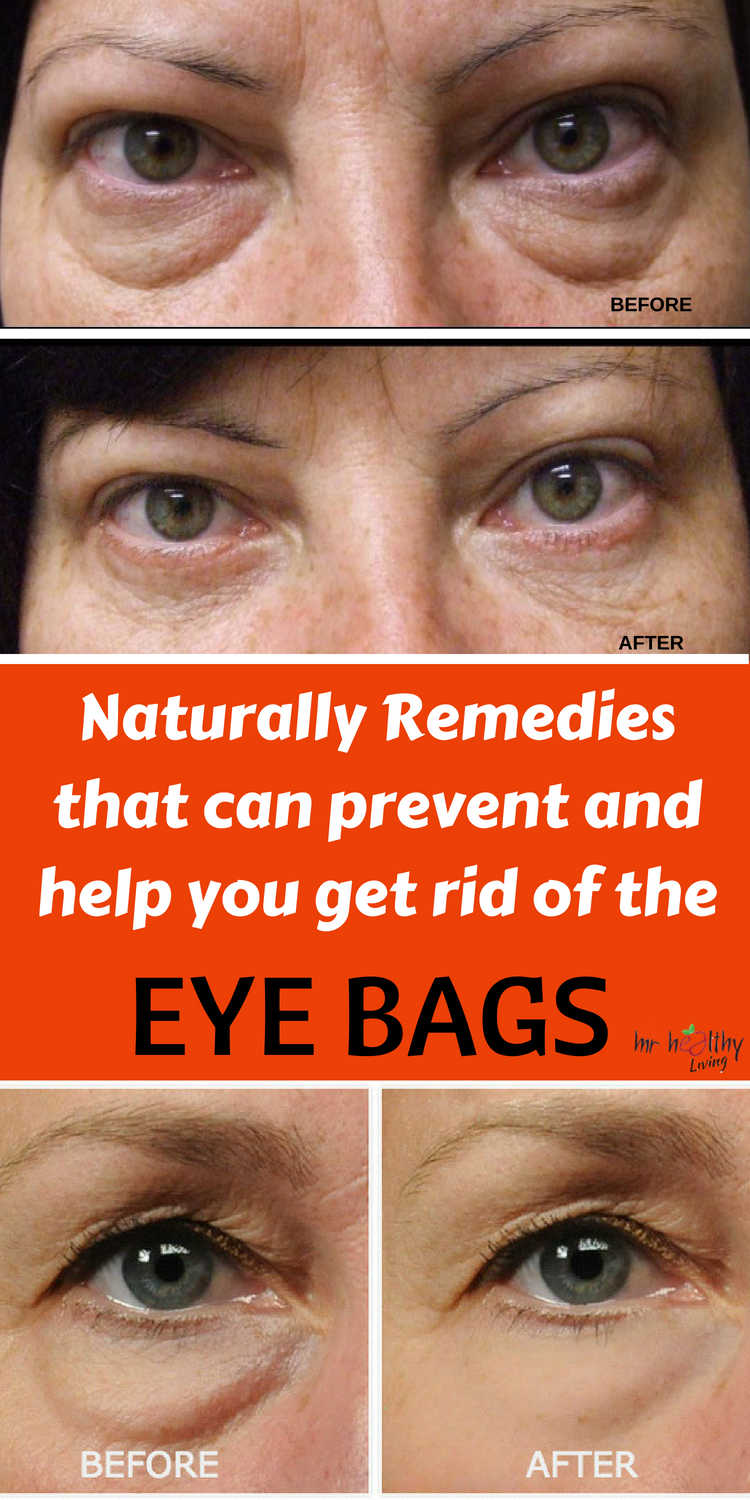 9ec1269fe4d59e27379de92e04c7cd40 - How To Get Rid Of Bags Under The Eyes Instantly