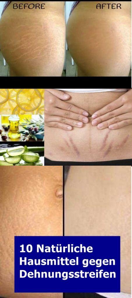 10 Natürliche Hausmittel gegen Dehnungsstreifen - Natürliche Alternative Heilmittel - Körper | Geist | Zuhause #naturalism