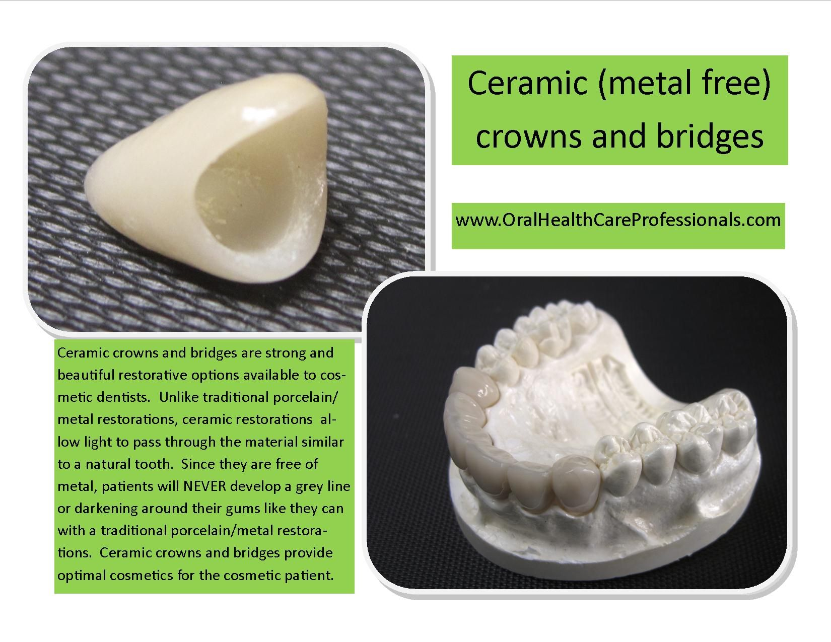 Ceramic #crowns and bridges are strong and beautiful restorative
