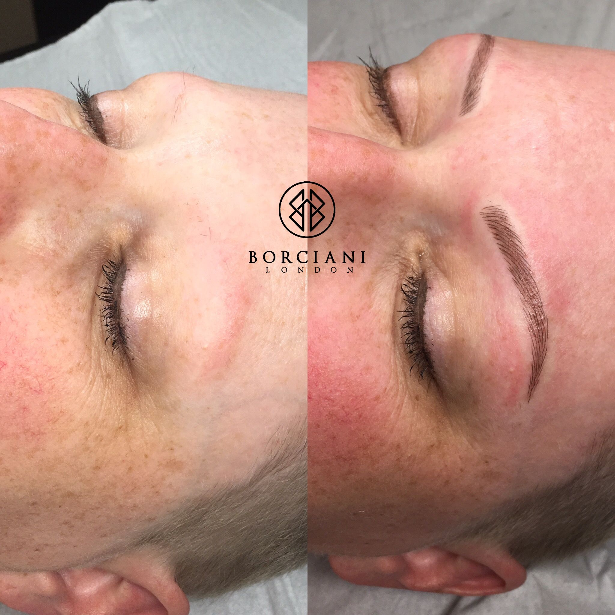 Have You Lost Your Brows Following Chemotherapy Or Due To Alopecia
