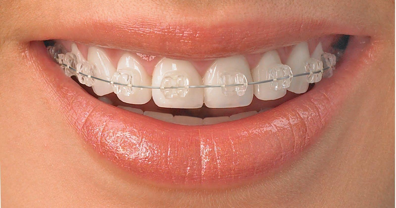 Aparelho Transparente Aparelho Dental Aparelho Ortodontico