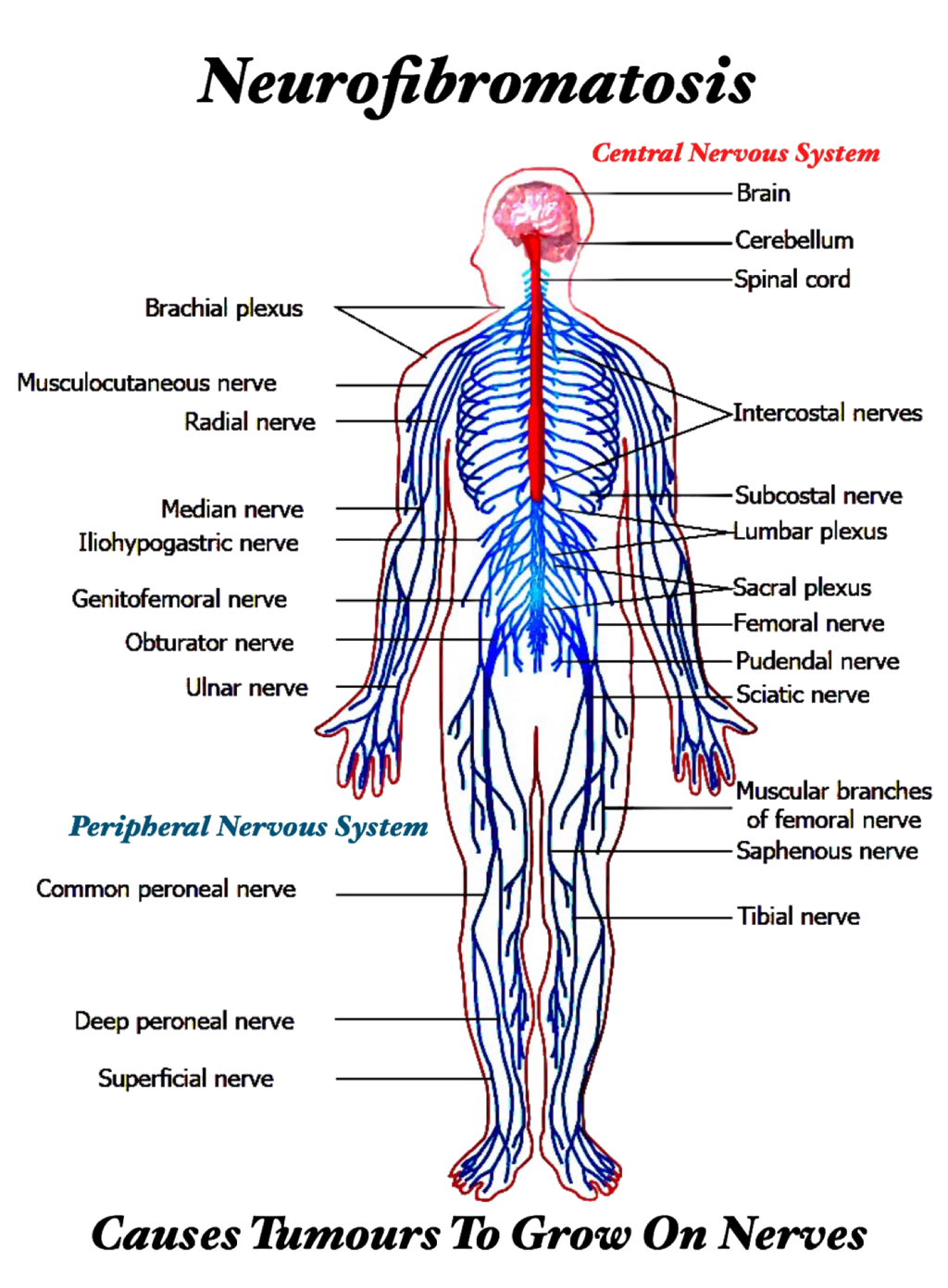 Pin By Nita Sayeed On Nf1 Neurofibromatosis Type 1 In 2020 Peripheral Nervous System Spinal Cord Nervous System