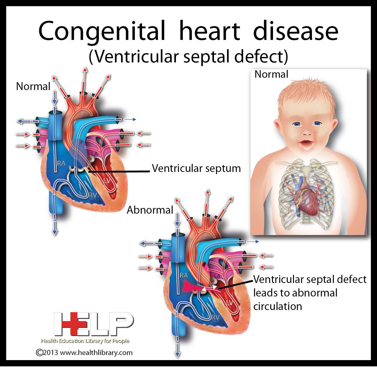 What is a Congenital Heart Defect (CHD)?