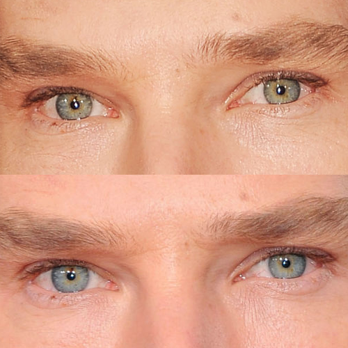Benedict's eyes are both green and blue. He has central ...