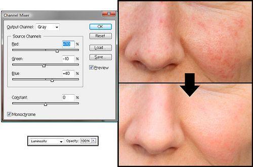 9ee49fa4e9fc76e6168c03c01d315a31 - How To Get Rid Of Red Blotchy Skin In Photoshop