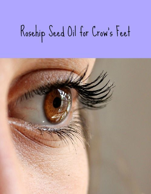 How rosehip seed oil can help get rid of your crow's feet. This oil is very rich in natural whole Vitamin C, not the laboratory isolate known as ascorbic ...