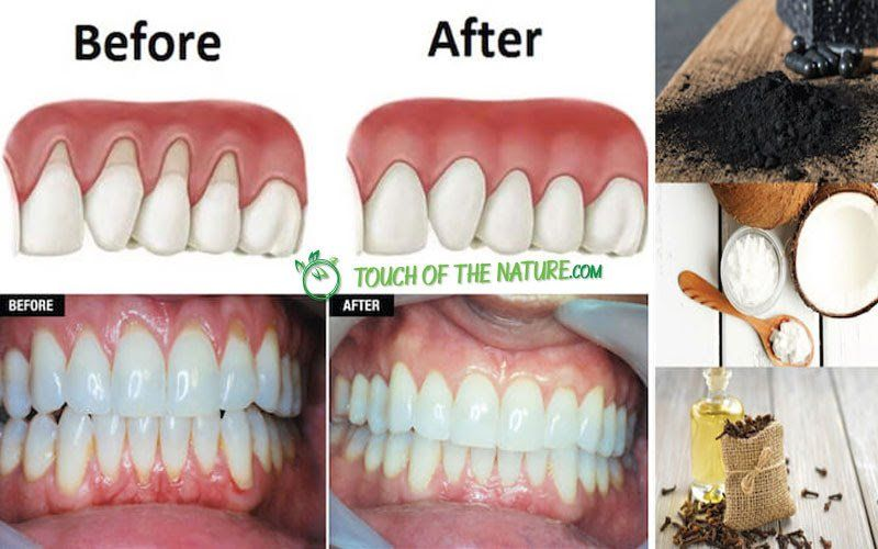 Make Receding Gums Grow Again And Fast With These Natural