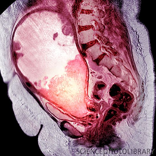 Cancer of the uterus. Abdomen of a woman with a sarcoma (pink mass at centre left) in the uterus (womb).