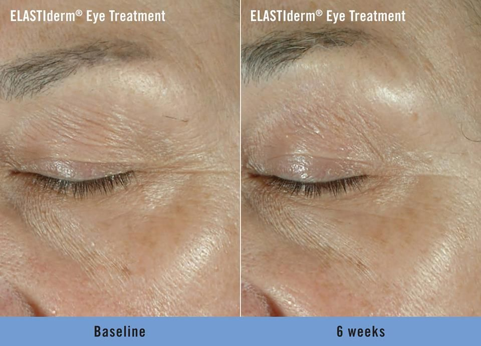 Have You Tried Our Elastiderm Eye Products These Before And After Photos Are Un Retouched And Demonstrate This Face Products Skincare Face And Body Skin Care