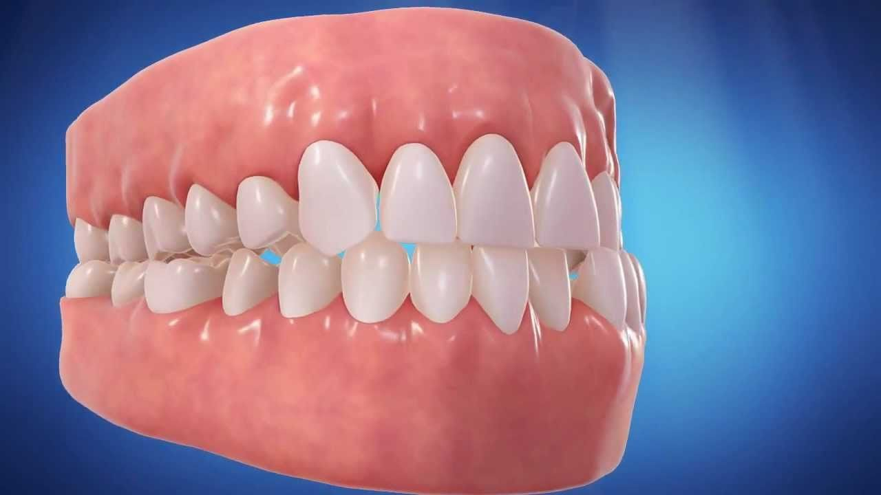 How long does it take for teeth to shift with braces