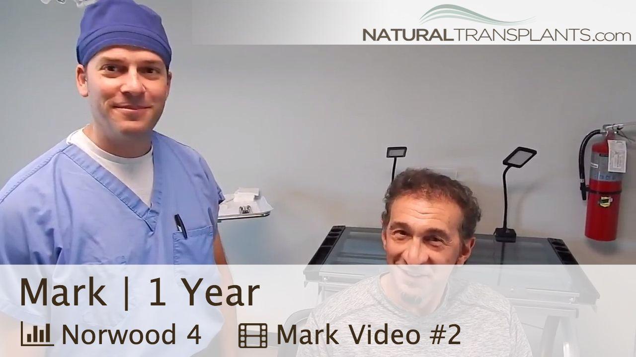 Hair transplant 1 year followup dr harold siegel