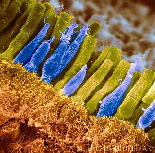 Rods and cones in retina: colorized scanning electron micrograph ...