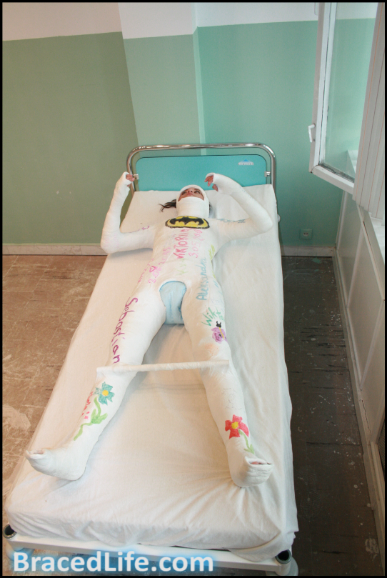 Girl Full Body Cast Included Neck And Head With Diaper