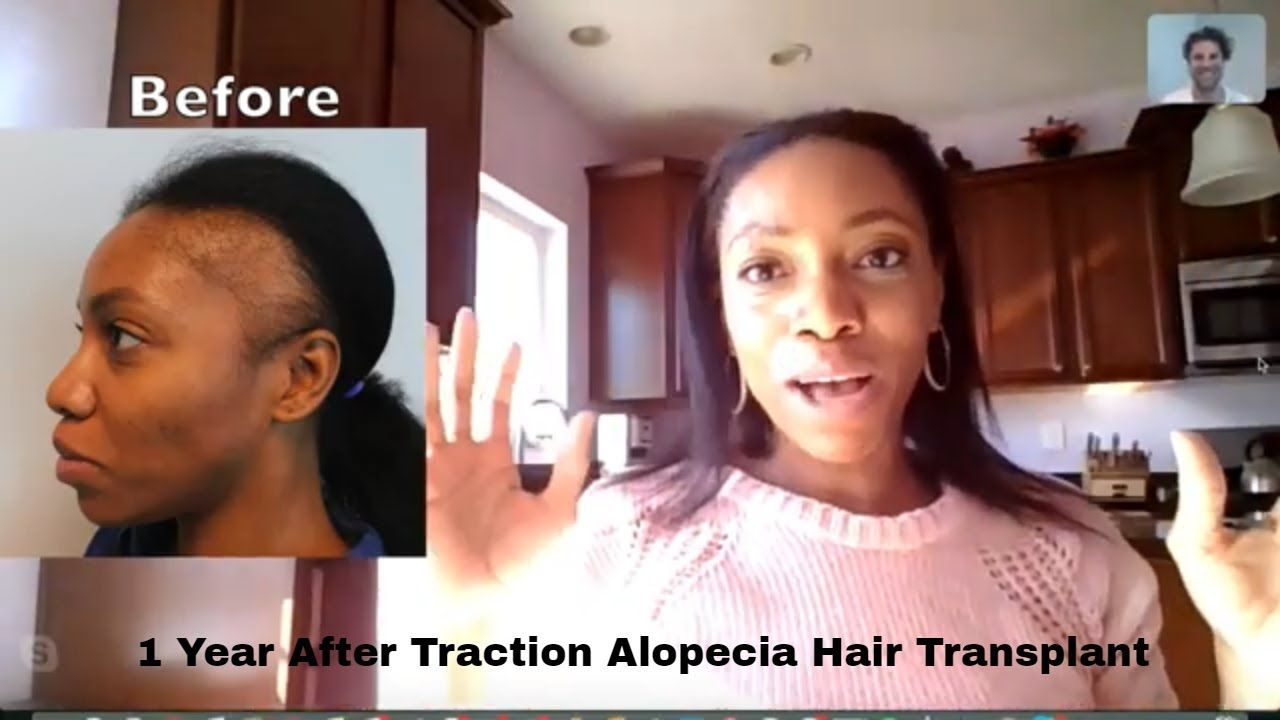 Great Hair Transplants Traction Alopecia Hairline Surgery Near Jupiter Florida Https Youtu Be Kb Traction Alopecia Hair Transplant Hair Transplant Results