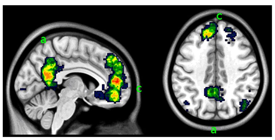 Brain Scans Clarify Borderline Personality Disorder ...