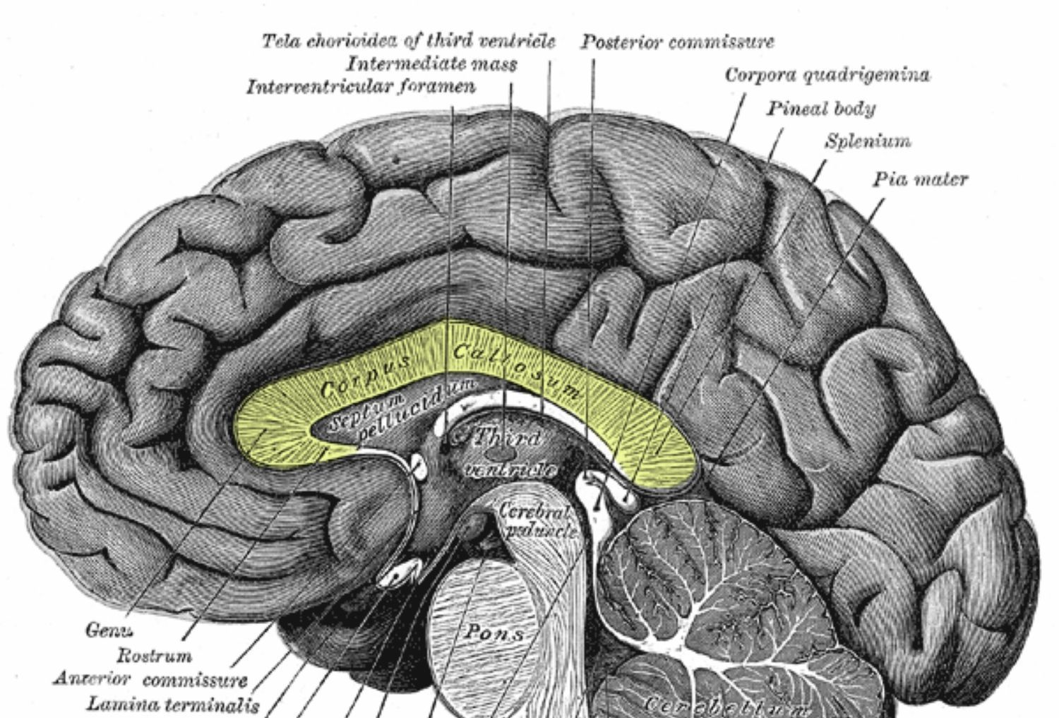 What Is The Corpus Callosum And Its Function In The Brain