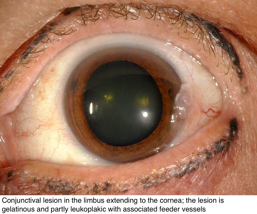 Image result for conjunctival intraepithelial Image