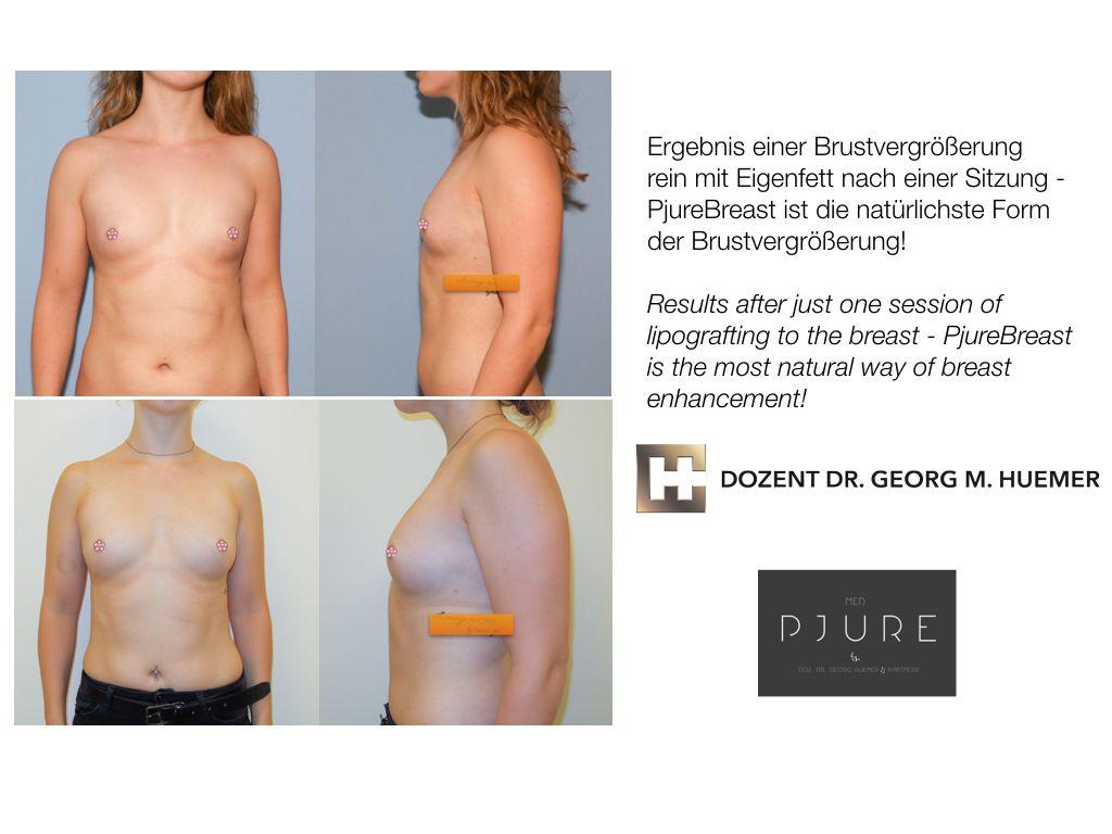 Brustvergrößerung erfahrungen eigenfett mit mit Erfahrungsberichte über