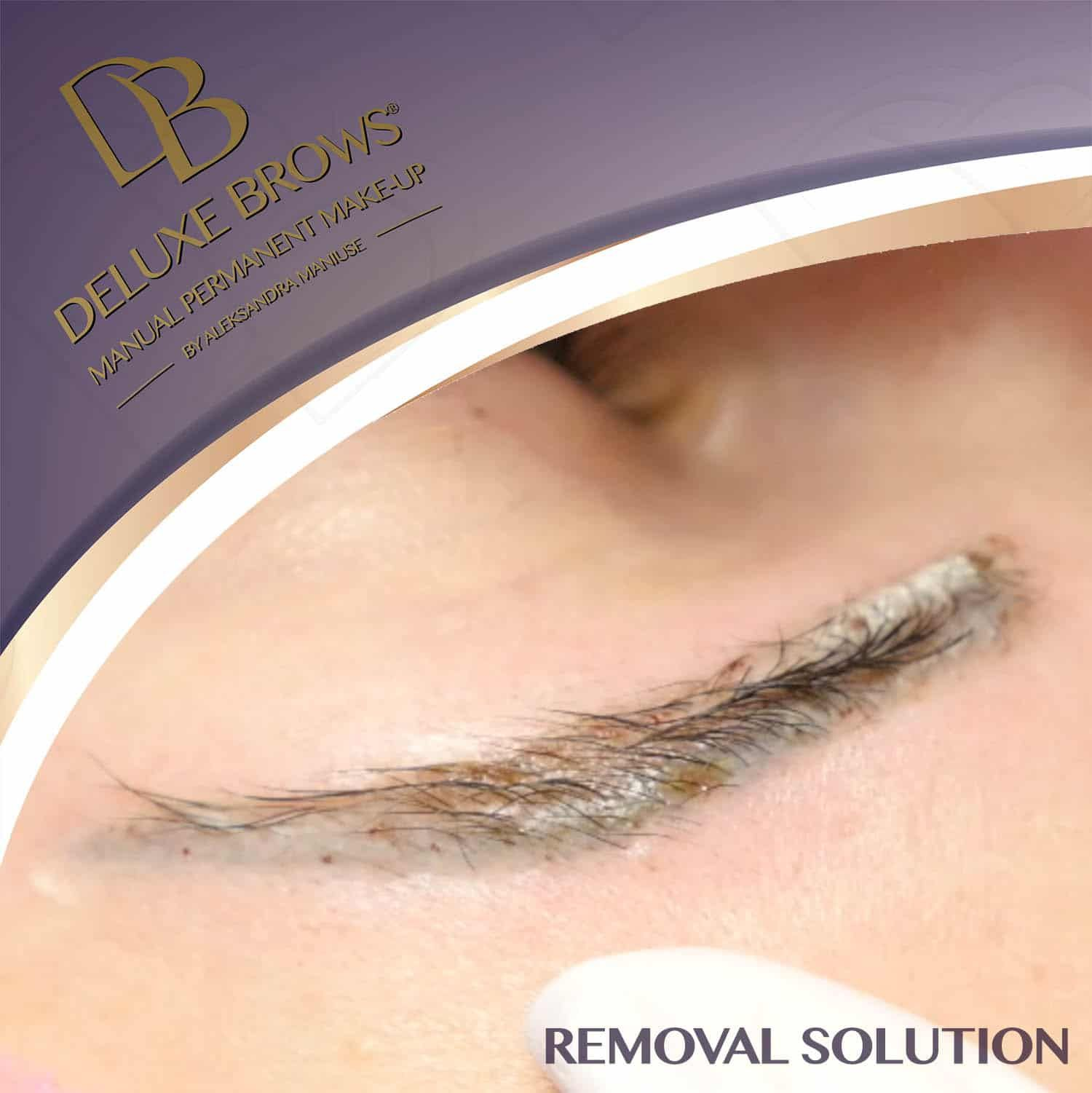Tattoo Removal Cream That Works
