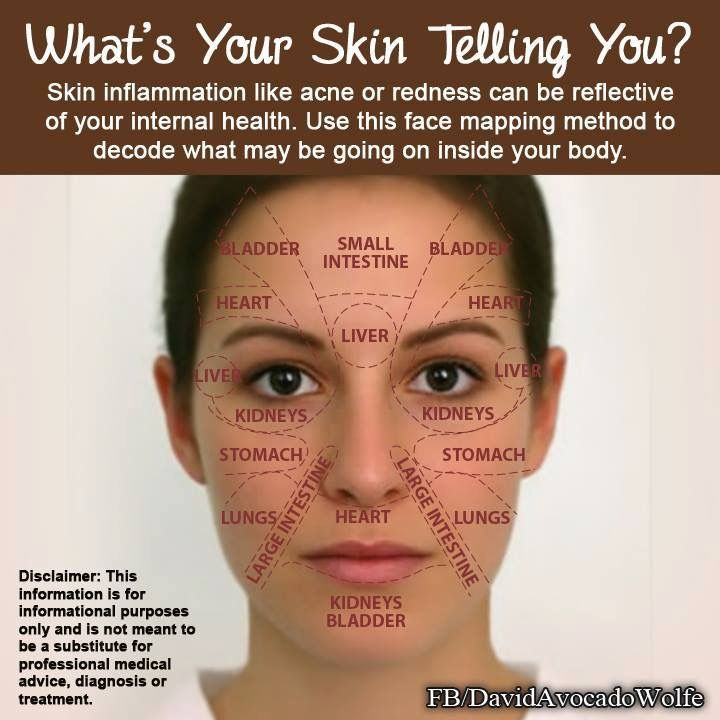 Pin by Saima Kamil Ali on Hacks !!! | Face mapping acne ...