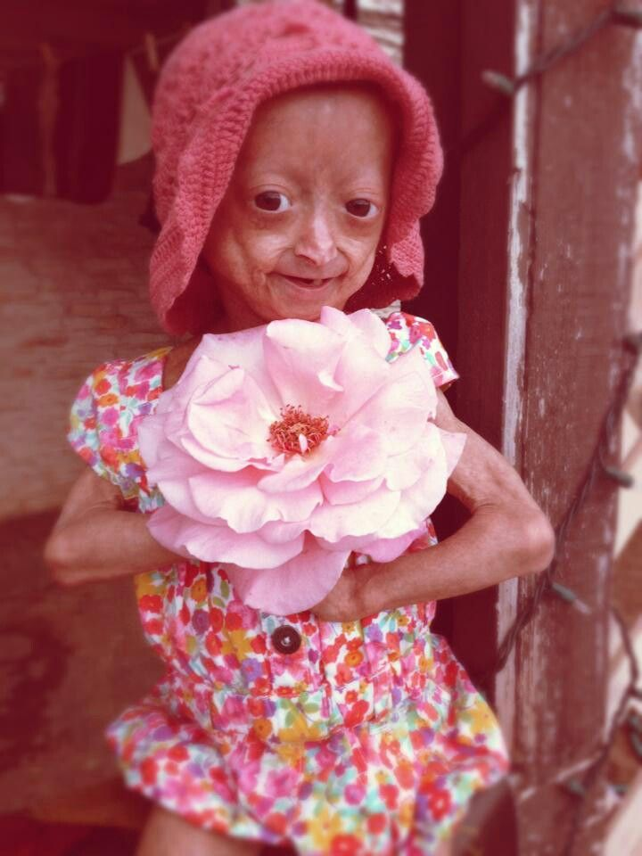 Adalia Rose Is A 8-Year-Old Battling With A Disease That -9825