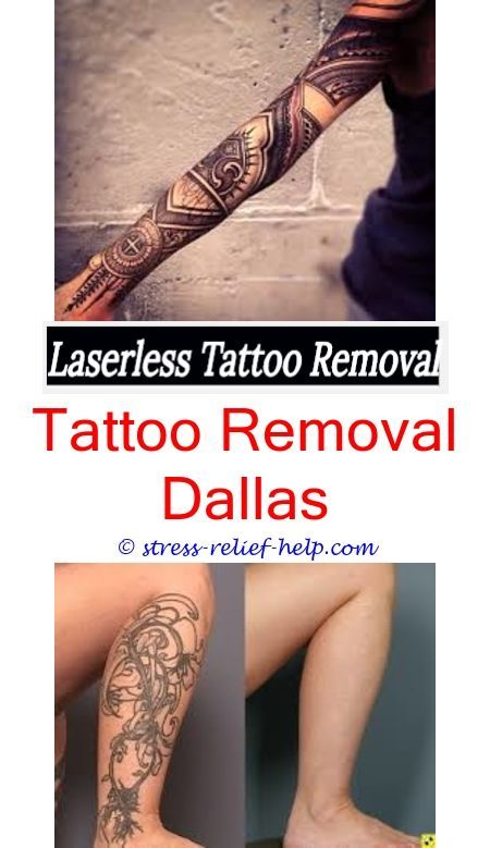 New Tattoo Removal How To Start A Business Many Sessions For Laser Treatment Can I Remove W