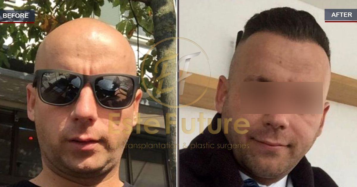 The Result Of 9 Months 4000 Grafts After Fue Hairtransplant