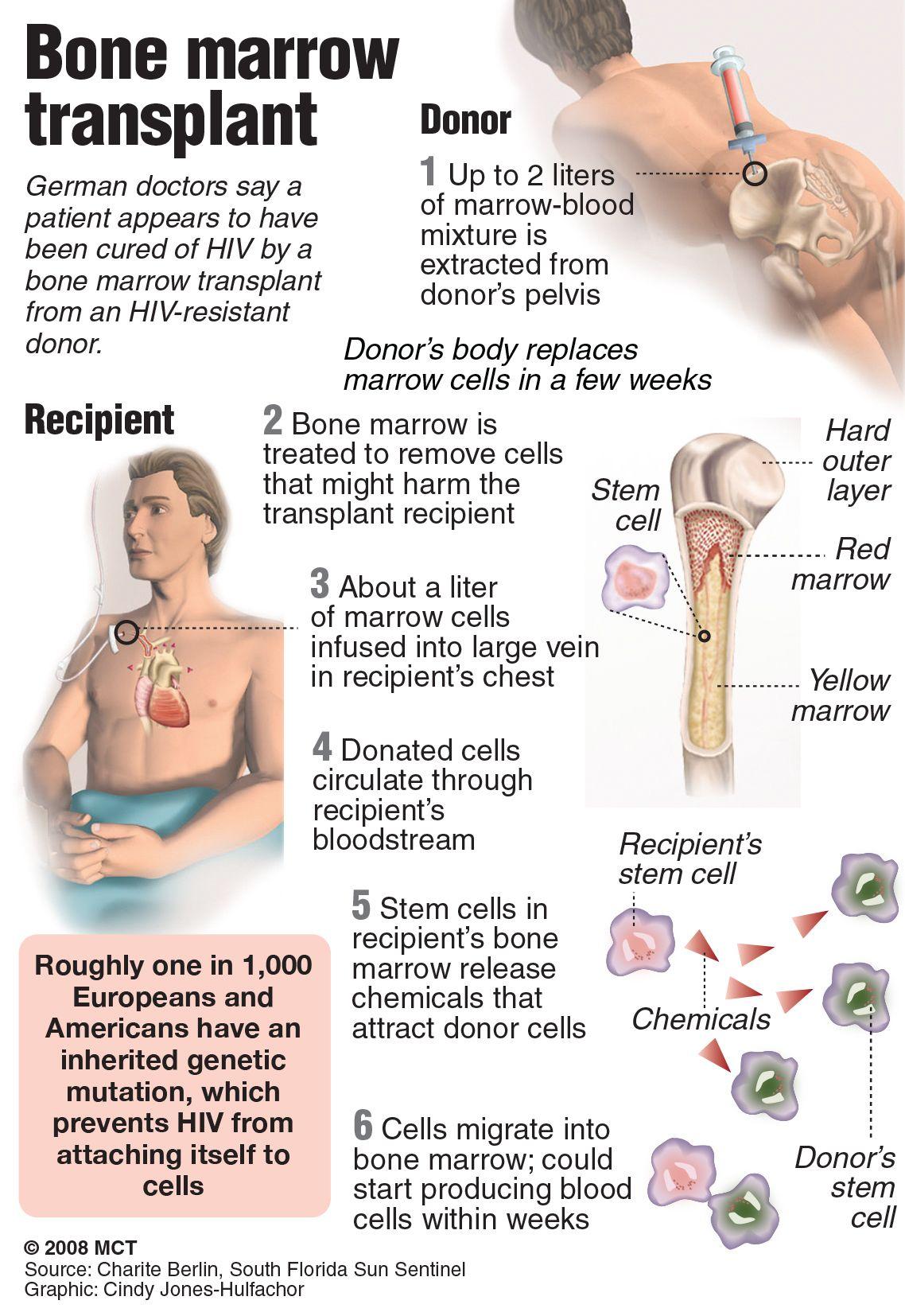 How dangerous is bone marrow donation